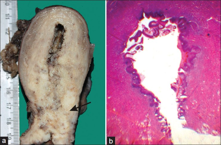 Figure 2: (a) Gross photograph showing cut surface of uterus with uterine cavity lining being replaced by an irregular shaggy growth along the whole extent. Also noted is a cervical growth measuring 2.5 × 20 × 1.5 cm (arrow). (b) Panoramic view of a part of the uterine cavity showing replacement of the entire lining of the uterine cavity with squamous epithelium without invasion of the underlying tissue (H and E, panoramic view)
