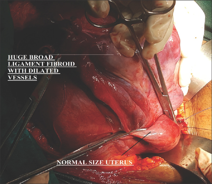 Huge (9 Kg) broad ligament fibroid mimicking sarcoma of uterus: A