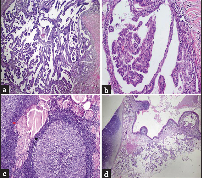 Figure 1: (a) The tumor composed of complex papillary structures in mature cystic teratoma (H and E, ×100), (b) Thyroid papillary carcinoma showing grooves, nuclear pseudoinclusions, nuclear clearing (chromatin margination) (H and E, ×400), (c) Chronic lymphoid thyroiditis with diffuse oncocytic changes in follicular epithelial cells (red arrow) and lymphoid follicles with germinal centers (black arrow) in the thyroid tissue (H and E, ×200) , (d) Respiratory type epithelium, seromucous glandular structures, mature cartilage and keratinous material within mature cystic teratoma (H and E, ×100)